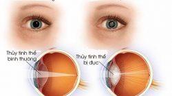 Các bệnh thường gặp về mắt bạn cần lưu ý